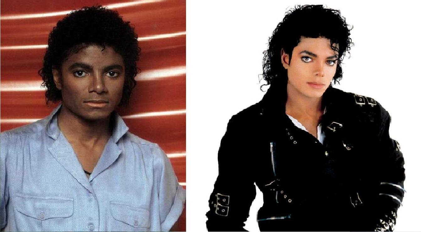 Dlaczego w miarę starzenia, skóra Michaela Jacksona stawała się coraz bielsza?